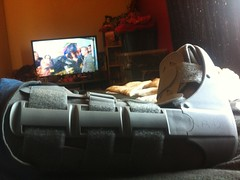 Photo of Broke my leg!