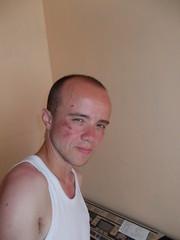 Badboy + concrete = roadrash (pain_snezny) Tags: skinned grazed scraped face badboy fall rash blood