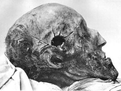 The Body of Charles the Seventh of Sweden, some 300 years after he was killed. The mortal wound to his head still visible. 1917. [444  335] #HistoryPorn #history #retro http://ift.tt/1WhfOxm (Histolines) Tags: history was still sweden body head some charles retro his timeline killed after years 300 he seventh visible wound 1917 mortal the 444 335  vinatage historyporn histolines httpifttt1whfoxm