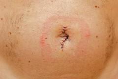 Medical News Today: Qu es una hernia? Cules son los sntomas de una hernia? (kirilpipo) Tags: que hernia abdominal artculo protuberancia