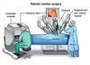 Robotic cardiac surgery (Mark S Hochberg) Tags: pcardio20140403v0002 13511 11 medical iconsult malefigure body heart aorta venacava cardiacsurg cardiacsurgery icon hearticon coronaryarteries strauch aorticarch ventricles superiorvenacava cadiologyhearticon cardiacsurgcabgrobotproc1 coronaryarterybypassgraft 990074 graft bypass wu pl990074en robotic roboticassisted surgical procedure davinci or surgeon nurse patient operatingroom camera proc1 surgery surgicalcart instruments tvmonitor operatingcomputerconsole roboticarms robotichands scrubs operatingtable roboticsurgicaldevice 3dheart zygote console hands control stool robot ai illustrator cardiacsurgmitvalreprobotproc1 mitralvalverepair robotassisted minimal minimallyinvasive valverepair 990079 pl990079en contentsegmenting conseg roboticcardiacsurgery