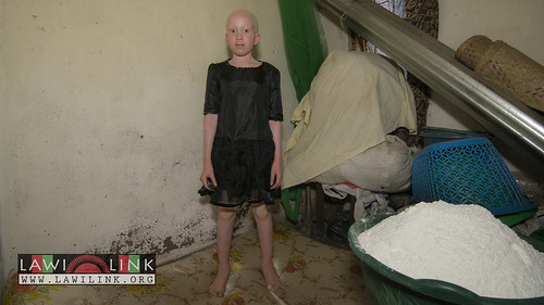 "Persons with Albinism • <a style=""font-size:0.8em;"" href=""http://www.flickr.com/photos/132148455@N06/27174778701/"" target=""_blank"">View on Flickr</a>"