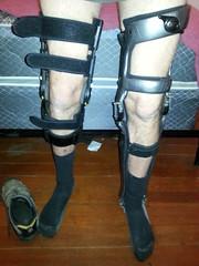 both braces (strap-wizard) Tags: braces postop kafo townson kneebrace legbrace orthotics