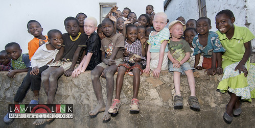 "Persons with Albinism • <a style=""font-size:0.8em;"" href=""http://www.flickr.com/photos/132148455@N06/27243953655/"" target=""_blank"">View on Flickr</a>"
