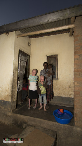 "Persons with Albinism • <a style=""font-size:0.8em;"" href=""http://www.flickr.com/photos/132148455@N06/26637162003/"" target=""_blank"">View on Flickr</a>"