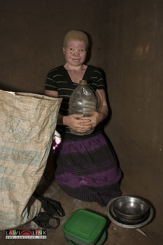 "Persons with Albinism • <a style=""font-size:0.8em;"" href=""http://www.flickr.com/photos/132148455@N06/26636114184/"" target=""_blank"">View on Flickr</a>"