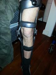 leg brace, 1 (strap-wizard) Tags: brace carbonfiber kafo townson legbrace orthotics