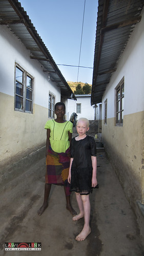"Persons with Albinism • <a style=""font-size:0.8em;"" href=""http://www.flickr.com/photos/132148455@N06/27243921065/"" target=""_blank"">View on Flickr</a>"