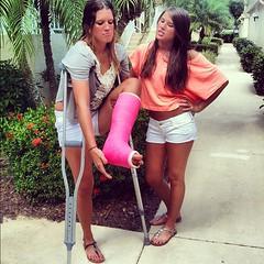 ak_e1b9f1123138140 (cb_777a) Tags: broken leg ankle foot cast crutches toes usa