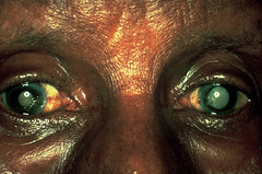 Bilateral mature cataracts (Community Eye Health) Tags: cataract blindness older people