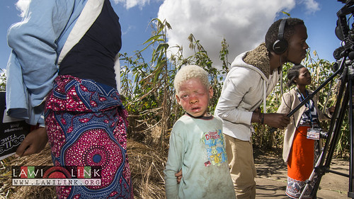 "Persons with Albinism • <a style=""font-size:0.8em;"" href=""http://www.flickr.com/photos/132148455@N06/26637702603/"" target=""_blank"">View on Flickr</a>"