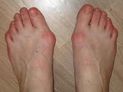 young russian girl's bunions (PawelIwaniak) Tags: feet toes heels veiny bunions