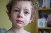 Chickenpox (Al_Downie) Tags: fuji chickenpox x100