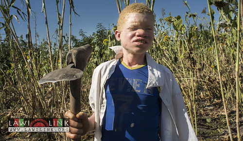 "Persons with Albinism • <a style=""font-size:0.8em;"" href=""http://www.flickr.com/photos/132148455@N06/26638503693/"" target=""_blank"">View on Flickr</a>"
