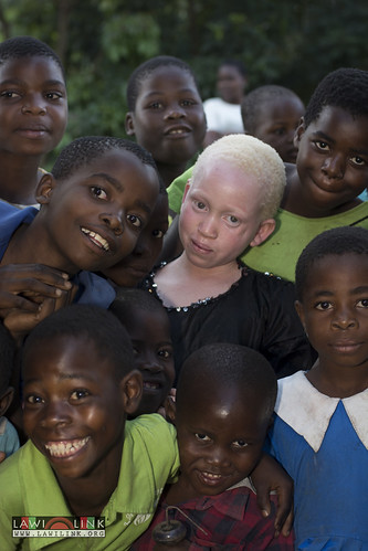 "Persons with Albinism • <a style=""font-size:0.8em;"" href=""http://www.flickr.com/photos/132148455@N06/27146843772/"" target=""_blank"">View on Flickr</a>"