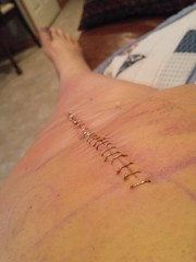 Day 98 of Year 7: welp, there it is... (Pahz) Tags: selfportrait macro incision staples tkr 365days totalkneereplacement pahziscyborg2016