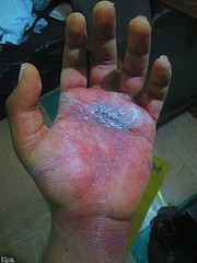 MY HAND IS FINALLY FREE AGAIN... (THE AMAZING KIKEMAN) Tags: broken finger injury recovery