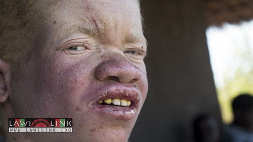 "Persons with Albinism • <a style=""font-size:0.8em;"" href=""http://www.flickr.com/photos/132148455@N06/27175060691/"" target=""_blank"">View on Flickr</a>"