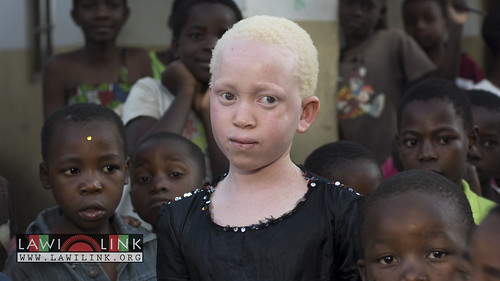 "Persons with Albinism • <a style=""font-size:0.8em;"" href=""http://www.flickr.com/photos/132148455@N06/27243874895/"" target=""_blank"">View on Flickr</a>"