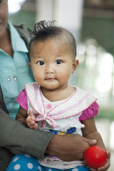 Operation Smile Thailand, Maesot Post-Operation photographs