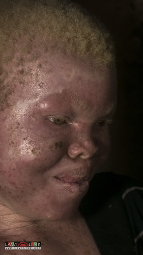 "Persons with Albinism • <a style=""font-size:0.8em;"" href=""http://www.flickr.com/photos/132148455@N06/26967674780/"" target=""_blank"">View on Flickr</a>"