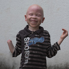 Tanzania, East Africa, Dar es Salaam, baraka cosmas a boy with albinism at under the same sun house, he lost his right hand in a witchcraft attack (Eric Lafforgue) Tags: africa charity portrait people childhood smiling horizontal tanzania person photography child african daressalaam belief human believe innocence albino genetic humanbeing oneperson curse ngo healer eastafrica witchdoctor tanzanian mutilated albinos pwa colorimage whiteskin lookingatcamera albinism underthesamesun oneboyonly colourimage africanethnicity colourpicture utss tz161