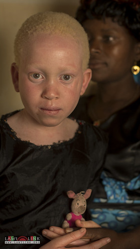"Persons with Albinism • <a style=""font-size:0.8em;"" href=""http://www.flickr.com/photos/132148455@N06/27243998225/"" target=""_blank"">View on Flickr</a>"