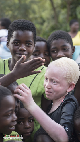"Persons with Albinism • <a style=""font-size:0.8em;"" href=""http://www.flickr.com/photos/132148455@N06/26638488343/"" target=""_blank"">View on Flickr</a>"