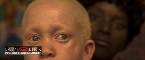 "Persons with Albinism • <a style=""font-size:0.8em;"" href=""http://www.flickr.com/photos/132148455@N06/26638346223/"" target=""_blank"">View on Flickr</a>"