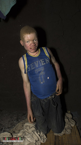 "Persons with Albinism • <a style=""font-size:0.8em;"" href=""http://www.flickr.com/photos/132148455@N06/27209980566/"" target=""_blank"">View on Flickr</a>"