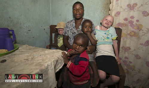 "Persons with Albinism • <a style=""font-size:0.8em;"" href=""http://www.flickr.com/photos/132148455@N06/26635894964/"" target=""_blank"">View on Flickr</a>"