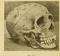 This image is taken from Page 468 of L'art dentaire en médecine légale (Medical Heritage Library, Inc.) Tags: forensic dentistry tooth dentisterie malformations anatomie comparã©e bouche odontologie mã©dicolã©gale livres rares dental jurisprudence dent dents columbialongmhl medicalheritagelibrary columbiauniversitylibraries americana date1898 idlartdentaireenm00amo
