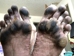 Dirty soles (Toyz B) Tags: foot feet soles tough dirtysoles barefeet barefoot