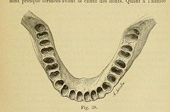 This image is taken from Page 111 of L'art dentaire en médecine légale (Medical Heritage Library, Inc.) Tags: forensic dentistry tooth dentisterie malformations anatomie comparã©e bouche odontologie mã©dicolã©gale livres rares dental jurisprudence dent dents columbialongmhl medicalheritagelibrary columbiauniversitylibraries americana date1898 idlartdentaireenm00amo