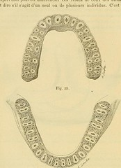 This image is taken from Page 110 of L'art dentaire en médecine légale (Medical Heritage Library, Inc.) Tags: forensic dentistry tooth dentisterie malformations anatomie comparã©e bouche odontologie mã©dicolã©gale livres rares dental jurisprudence dent dents columbialongmhl medicalheritagelibrary columbiauniversitylibraries americana date1898 idlartdentaireenm00amo