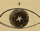 This image is taken from Page 178 of Student's guide to diseases of the eye (Medical Heritage Library, Inc.) Tags: eye color blindness ophthalmology diseases perception vision defects medicalheritagelibrary francisacountwaylibrary americana date1883 idstudentsguidetod1883nett