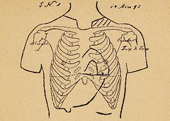 This image is taken from Die Athmungsgymnastik bei der Lungentuberkulose (Medical Heritage Library, Inc.) Tags: tuberculosis pulmonary therapy exercise breathing exercises wellcomelibrary ukmhl medicalheritagelibrary europeanlibraries date1894 idb30474486