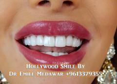 hollywood smile 2149 (Style Dental Clinic Beirut Lebanon) Tags: veneers hollywoodsmileveneers lebanon dentist dentalimplants beirut hollywoodsmile dentalclinic dremilemedawar