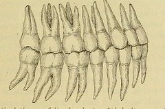 This image is taken from Page 89 of L'art dentaire en médecine légale (Medical Heritage Library, Inc.) Tags: forensic dentistry tooth dentisterie malformations anatomie comparã©e bouche odontologie mã©dicolã©gale livres rares dental jurisprudence dent dents columbialongmhl medicalheritagelibrary columbiauniversitylibraries americana date1898 idlartdentaireenm00amo