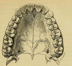 This image is taken from Page 51 of L'art dentaire en médecine légale (Medical Heritage Library, Inc.) Tags: forensic dentistry tooth dentisterie malformations anatomie comparã©e bouche odontologie mã©dicolã©gale livres rares dental jurisprudence dent dents columbialongmhl medicalheritagelibrary columbiauniversitylibraries americana date1898 idlartdentaireenm00amo