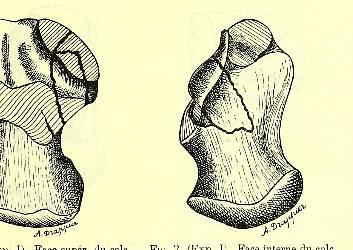 This image is taken from Page 25 of Fractures des os du tarse : thèse pour le doctorat en médecine présentée et soutenue le jeudi 10 juillet 1890, à une heure