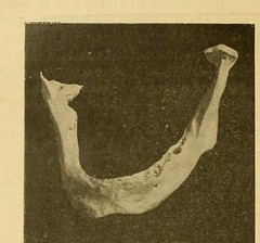This image is taken from Page 552 of L'art dentaire en médecine légale (Medical Heritage Library, Inc.) Tags: forensic dentistry tooth dentisterie malformations anatomie comparã©e bouche odontologie mã©dicolã©gale livres rares dental jurisprudence dent dents columbialongmhl medicalheritagelibrary columbiauniversitylibraries americana date1898 idlartdentaireenm00amo