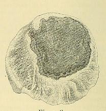 This image is taken from Page 14 of Beiträge zur Klinik der Rückenmarks- und Wirbeltumoren