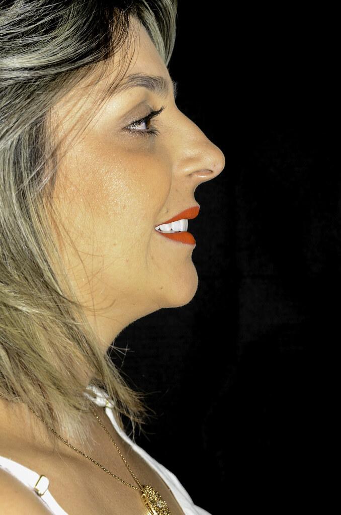 Clínica Odonto Cabral - Paciente Josi - Pós-tratamento - Fotos Filipe Diniz -10 9db802a612