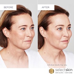 Cosmetic Injectable Treatment (select14) Tags: cosmetic injectable treatment