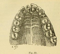 This image is taken from Page 130 of L'art dentaire en médecine légale (Medical Heritage Library, Inc.) Tags: forensic dentistry tooth dentisterie malformations anatomie comparã©e bouche odontologie mã©dicolã©gale livres rares dental jurisprudence dent dents columbialongmhl medicalheritagelibrary columbiauniversitylibraries americana date1898 idlartdentaireenm00amo
