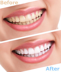Laser Teeth Whitening (Laser Dental Clinic) Tags: whitening bleaching teeth treatment white yellow healthy woman dental tooth treat dirty perfect protection dentist lips mouth smiling concept fresh clean beauty happiness stomatology oral smile health dentition female denture creativeconcept closeup isolated background beautiful care feminine clear person laugh whiten people girl young horizontal