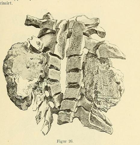 This image is taken from Page 65 of Beiträge zur Klinik der Rückenmarks- und Wirbeltumoren