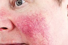 Rosacea: causes, symptoms, and tretments - Ubiqi Health (ubiqi) Tags: health medical beauty singapore review rosaceawomanelderlyunhappydiseasesickfaceproblemglumiss czechrepublic cze rosacea woman elderly unhappy disease sick face problem glum issue depressed vessels sad facial ill disappointed suffer suffering frustrated redness caucasian natural sickness chronic cheeks dilated mature nomakeup aged detail closeup eyes grey disorder bad annoying