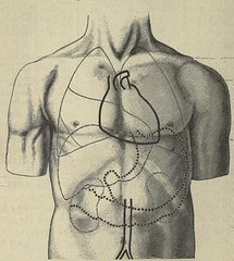 This image is taken from On diseases of the lungs and pleurae, including consumption (Medical Heritage Library, Inc.) Tags: respiratory organs diseases tuberculosis gerstein toronto medicalheritagelibrary date1893 idondiseasesoflung00poweuoft